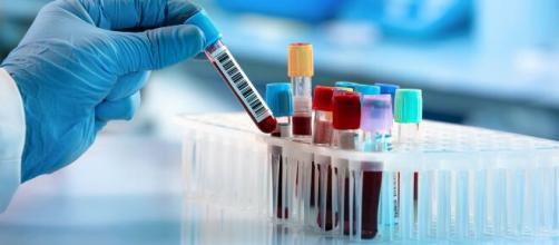 El grupo 0 en la sangre ofrece mayor resistencia al virus