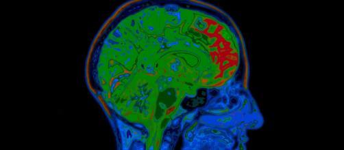 Estudo brasileiro indica que coronavírus pode infectar células cerebrais. (Arquivo Blasting News)