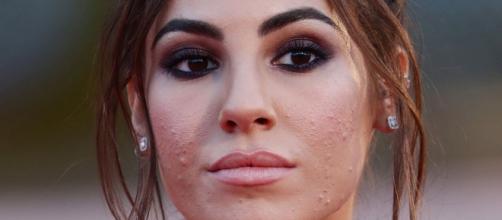 Giulia De Lellis, sfogo per l'acne: 'Ogni cura sembra fallire, fatico a guardarmi così'.