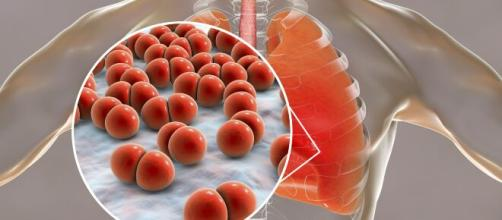Uma alimentação equilibrada pode ajudar a aliviar os sintomas da bronquite. (Arquivo Blasting News)