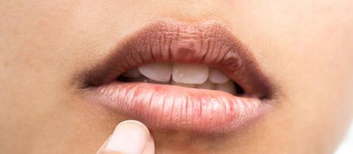 Labios en invierno: mantenerlos hidratados ayuda a evitar la sequedad