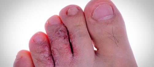 Los hongos en los pies son una de las enfermedades dermatológicas más comunes.