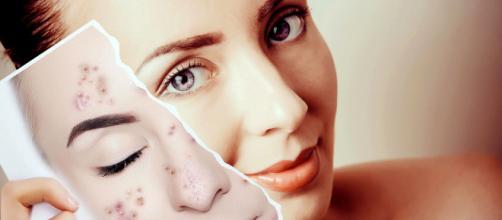 Renovar la piel, borrar manchas e hidratar