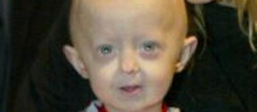 Menina de 8 anos de idade morre de velhice por sofrer com doença rara. ( Arquivo Blasting News )