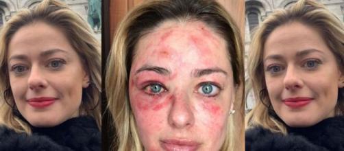 Maria Antonia, do MasterChef 2018, desabafou com os seguidores após se acidentar. (Reprodução/Instagram)