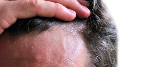 La seborrea puede provocar la caída del cabello y afectar a hombres y mujeres.