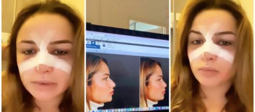 LMAC : Victoria Méhault s'est faite refaire le nez. Credit : Instagram/ victoia_méhault
