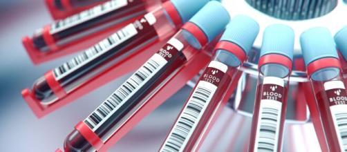 Detectar 13 tipos de cáncer con un gota de sangre - 65ymas.com