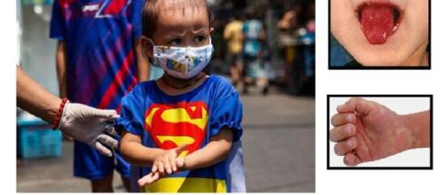 Nelle zone a maggior diffusione del Covid-19, nelle ultime settimane tra i bambini c'è una impennata di casi di malattia di Kawasaki.