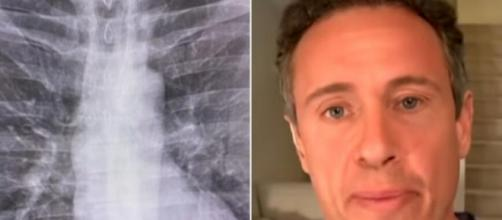 Âncora da CNN Chris Cuomo foi diagnosticado com a Covid-19. (Fotomontagem)
