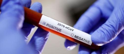 Coronavírus: Brasil registra 749 mortes nas últimas 24 horas. (Arquivo Blasting News)