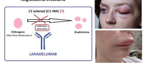 Lanadelumab è un anticorpo, ora disponibile anche in Italia, indicato in una patologia rara, che genera gonfiori sulla pelle e sulle mucose.