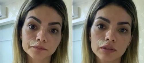 Kelly Key retirou uma lesão próxima ao nariz. (Reprodução/Instagram/@oficialkellykey)