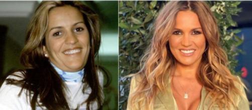 Marta López antes y después de las operaciones