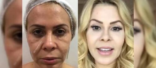 Joelma decidiu passar pelo procedimento de harmonização facial. (Arquivo Blasting News)