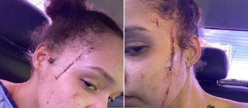 sobrinha de Michael Jackson mostra ferimentos após ataque de vizinha. (Arquivo Blasting News)