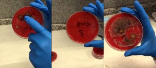 Una médica farmacéutica demostró que las mascarillas que no se lavan o desinfectan con frecuencia pueden tener bacterias