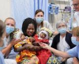 Dos niñas gemelas que nacieron unidas por el cráneo fueron separadas exitosamente en el hospital pediátrico de Roma Bambino Gesù.