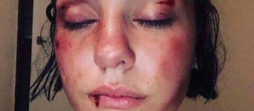 La jeune fille a publié les images de son agression sur les réseaux sociaux, source : capture Twitter - France 3 Occitanie