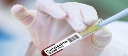 La vacuna rusa contra el coronavirus debería distribuirse mundialmente desde octubre. Foto: Pixabay