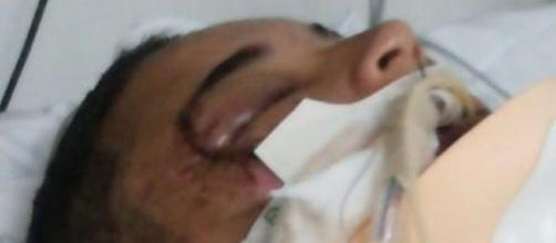 Garota de 17 anos está hospitalizada após ser agredida por três homens. (Arquivo Pessoal)