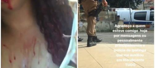 A mulher postou um vídeo falso onde aparecia chorando e sangrando. (Reprodução/Redes Sociais)