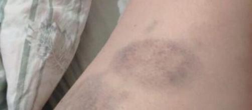 Vítima ficou com marcas roxas nas pernas. (Reprodução/Arquivo Pessoal)