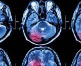 Un nuevo tratamiento experimental que abre la puerta a la esperanza contra el cáncer (Wikimedia Commons)