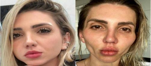 Jéssica Frozza comenta sobre su experiencia con la cirugía estética que le deformo el rostro (@eusoufrozza / Instagram)