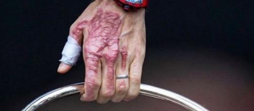 Romain Grosjean poste une photo incroyable de sa main brûlée (Instagram et Twitter Romain et Marion Grosjean)