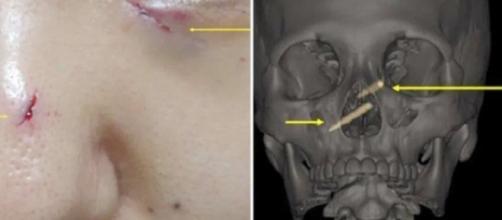 Captura de pantalla de las lesiones que presentaba una mujer que tenía unos palillos chinos incrustados.