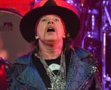 Axl Rose si è sentito male durante il concerto dei Guns N'Roses a Chicago