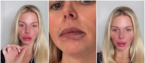 Jessica Thivenin défigurée par sa nouvelle chirurgie esthétique et accusée d'être une mauvaise mère, elle répond à ses haters.