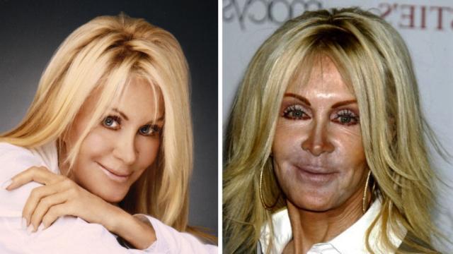 As 8 cirurgias que mais deram errado no mundo das celebridades
