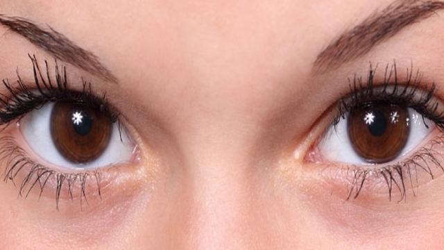 Ela achava que estava com uma infecção nos olhos, mas era algo pior que isso