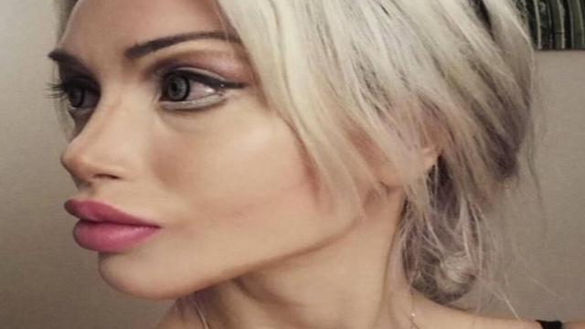 La 'Barbie umana' ospite a Domenica Live racconta i suoi interventi chirurgici