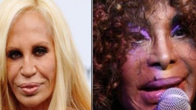 Conheça as celebridades que fizeram plástica e pioraram ainda mais