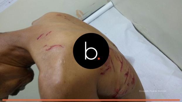 Homem é atacado por cães ao tentar furtar bomba de caixa d'água