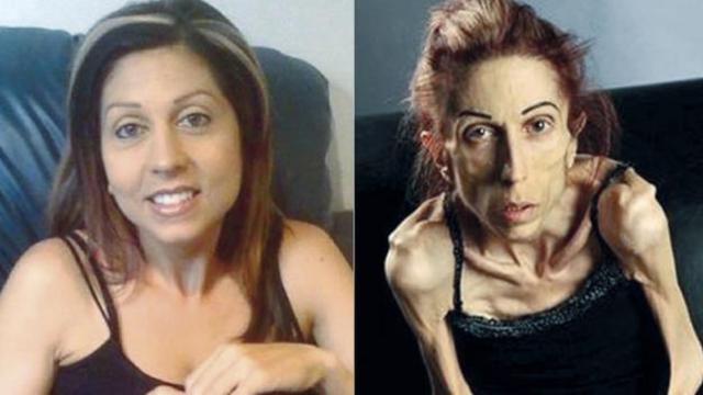Vídeo: Veja com está hoje a atriz que chegou a pesar 18 quilos