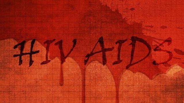 Confira: famosos brasileiros que morreram por causa da AIDS e você não sabia