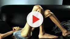 20enne sconfigge l'anoressia: ecco cosa le ha salvato la vita