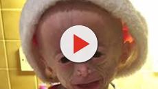 Lucy Parke è morta: la bambina era affetta da progeria