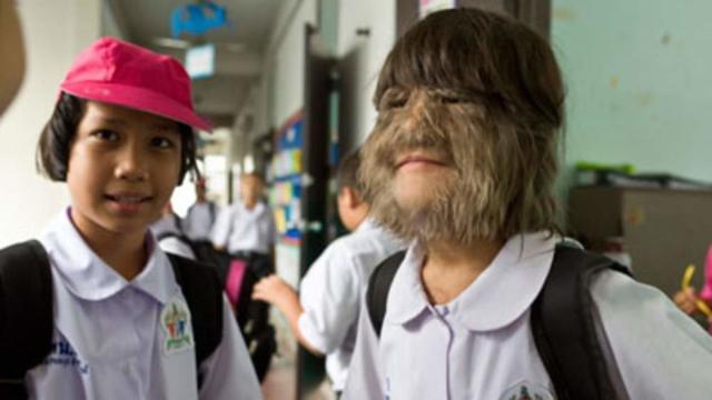 Vídeo: garota mais peluda do mundo mudou e casou