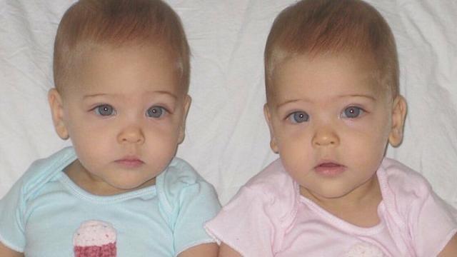 Vídeo: Consideradas as gêmeas mais lindas do mundo, veja como elas cresceram.