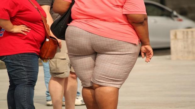 La cirugía bariátrica está indicada para personas con obesidad mórbida