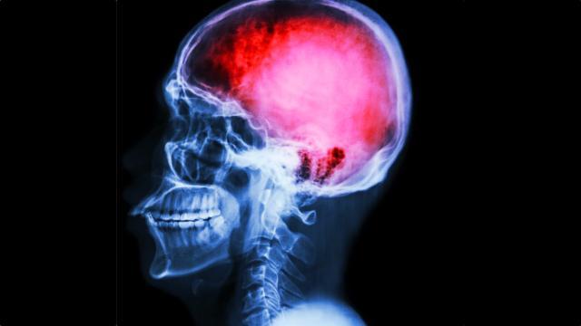Accidente cerebrovascular y ataque cardíaco
