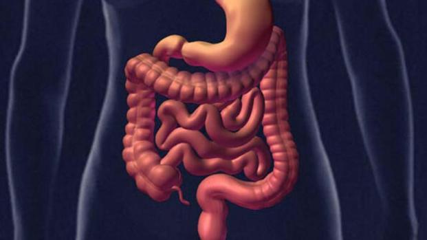 Alimentos que causan inflamación intestinal