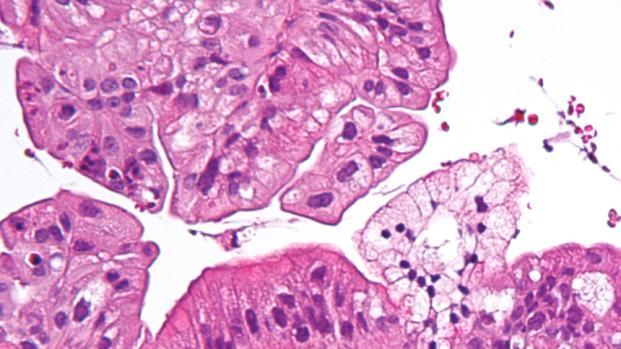 Larotrectinib: ¡La manera más efectiva de combatir el cáncer!