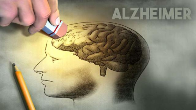 Investigadores de Alzheimer ganan premio intelectual