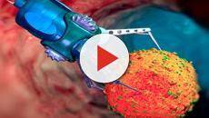 Cancro, scoperta la proteina responsabile dello sviluppo dei tumori